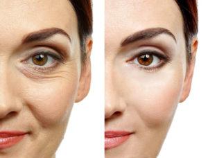 Meso Botox - Mimikfältchen treten im Laufe des Lebens zwangsläufig auf